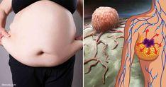 """La investigación desmiente el mito de """"gordo sano"""", mostrando que la obesidad eventualmente afecta la salud y las finanzas, incluso si la persona está sana actualmente. http://articulos.mercola.com/sitios/articulos/archivo/2017/10/18/el-riesgo-de-salud-de-la-obesidad.aspx"""