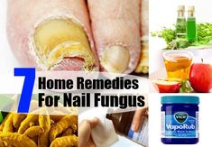 Home Remedies For Nail Fungus - Natural Treatments & Cure For Nail Fungus | Health Care A to Z