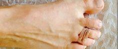 Descubra por que você deve prender os dedos dos pés com uma fita elástica - um truque surpreendente! - http://comosefaz.eu/descubra-por-que-voce-deve-prender-os-dedos-dos-pes-com-uma-fita-elastica-um-truque-surpreendente/