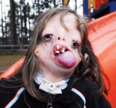 Juliana Wetmore was born with Treacher Collins syndrome, a rare genetic disorder that left her missing 40% of the bones in her face.