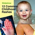 Slideshow: 12 Common Childhood Rashes  Good to know when to worry, when not to worry and what to do.