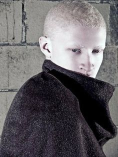 Interview with albino Model, Shaun Ross, in technicolor - # AFRO #PUNK
