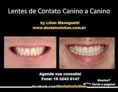 Dental Solution by Lilian Meneguetti: LENTES DE CONTATO  IMPERCEPTÍVEIS, LENTES…