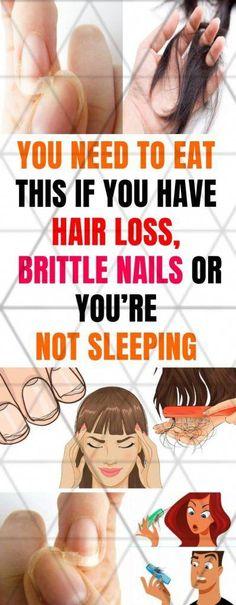 Baldness Solutions to End the Hair-raising Story of Hair Loss - Hairl Loss Tips Baby Hair Loss, Hair Loss Cure, Stop Hair Loss, Hair Loss Remedies, Prevent Hair Loss, Argan Oil For Hair Loss, Biotin For Hair Loss, Hair Loss Shampoo, Biotin Hair
