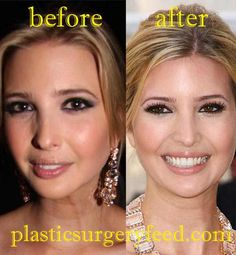 story life people plastic surgery requests ivanka trump
