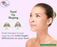 Nasal Tip Surgery in Delhi, India Contact the best #Rhinoplasty #Specialist Book your appointment at +91-9818369662, 9958221983
