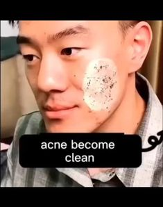 Beauty Skin, Health And Beauty, Different Types Of Acne, Dark Eye Circles, Film Photography Tips, Glow Up Tips, Clear Skin Tips, Face Skin Care, Facial Treatment