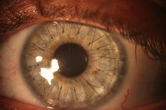 Des points de suture dans l'oeil