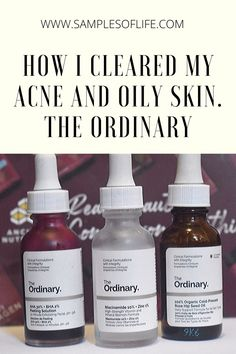 How I cleared my acne prone skin with the ordinary products. Best Skin Care Regimen, Oily Skin Care, Face Skin Care, Anti Aging Skin Care, Skincare For Oily Skin, Dry Skin, Skin Care Routine For Teens, Skin Routine, The Ordinary Skincare Routine