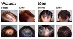 Bella Tu Med Spa | Hair Restoration with Micro-Needling and PRP