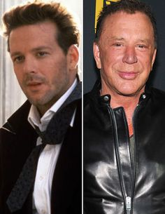 Before and After Plastic Surgery: Mickey Rourke