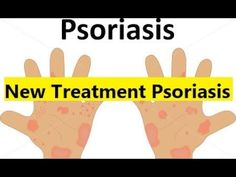 New Treatment Psoriasis - Most Effective Treatment for Psoriasis