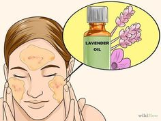Is rosacea itchy on face best rated anti aging face cream,acne soap best anti aging home treatment,home remedies for anti aging eyes home remedies for wrinkles. Natural Remedies For Rosacea, Rosacea Remedies, Herbal Remedies, Rosacea Symptoms, Acne Rosacea, Home Treatment, Herbalism, The Cure, Health Tips