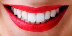 Como blanquear lo dientes y tener una sonrisa perfecta