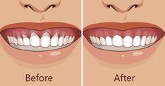 Top Oral Health Advice To Keep Your Teeth Healthy. The smile on your face is what people first notice about you, so caring for your teeth is very important. Unluckily, picking the best dental care tips migh Gum Health, Teeth Health, Oral Health, Dental Health, Dental Care, Public Health, Herbal Remedies, Health Remedies, Natural Remedies