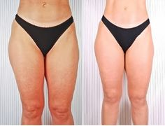 Tips Zone: How to Get Rid of Inner Thigh Fat-Top 3 Tips