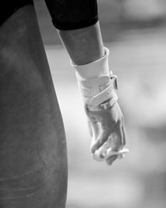 Rips. Bruises. Sprains. Cuncussions. Rope burn. Beam burn. Rug burn. Broken bones. Fractures. Vault burn (hitting your back on the edge) hitting your head on the vault. Pit foam in your eyes. Eating mat. Gymnasts been through it all. When someone asks you how you feel about it you say I hate it. Then they say then why do you do it? I love it :)