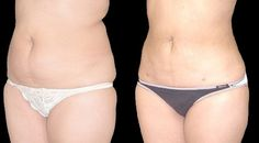 How to Make Sure you are Getting the Right Liposuction Procedure  #liposuctioncost #cosmeticsurgery #skintightening #undereyewrinkles