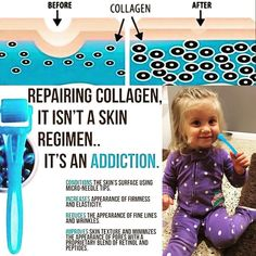 Even Maddi girl is obsessed with my RodanFields Amp Md Roller!!  This little tool is a serious addiction! It tricks your skin into producing collagen! As we get older we produce less and less! Amp Md not only gives you a firm smooth and overall better skin texture but can reduce the appearance of wrinkles enlarged pores scars stretch marks and loose skin! Message me to order yours!! (P.S. Maddison watched me use it and was being silly! She's going to be a pro before I know it!! But I put it…
