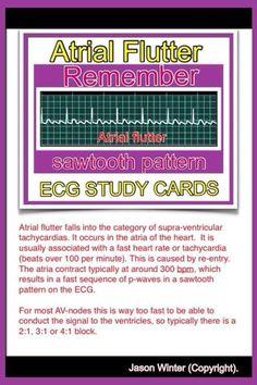 ECG - Atrial flutter, extra P-waves Nursing School Tips, Nursing Tips, Nursing Notes, Cardiac Nursing, Nursing Assessment, Nursing Information, Study Cards, Rn School, Nursing Board