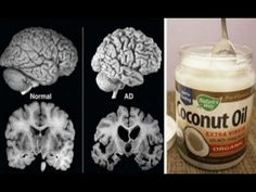 A man had coconut oil 2 times every day for 2 months and his brain changed! - YouTube