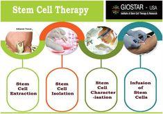 GIOSTAR Provide Stem Cell Treatment for Diabetes, Liver, Parkinson, Arthritis & more diseases @ Stem Cell Hospital in India, USA, UAE & UK.