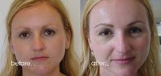 Image result for pictures of shaping the face with makeup