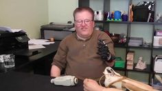 A $50 3D-Printed Prosthesis Compared to a $42,000 Myoelectric Prosthesis...