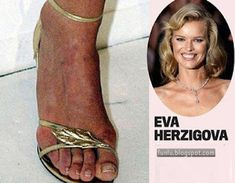 Toe curling tootsies: Jennifer Aniston's feet are veiny, Kate Moss's have a serious deformity and Penelope Cruz's need surgery! Eva Herzigova: The Czech model clearly forgot to put sunscreen on her feet, and is paying a nasty, tomato-red price … Michelle Yeoh, Jennifer Aniston Feet, Jennifer Lopez, Celebrity Bodies, Celebrity Feet, Claudia Schiffer, Katie Holmes, Sarah Jessica Parker, Kate Beckinsale
