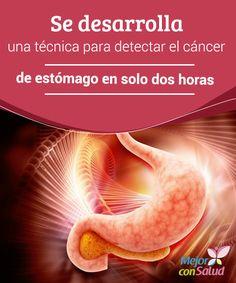 Se desarrolla una técnica para detectar el cáncer de estómago en solo dos horas  El cáncer de estómago o adenocarcinoma es el quinto tumor maligno más frecuente en el mundo.