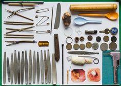 Einige der Magen-Funde sind in der Bonner Zweigstelle des Deutschen Museums...