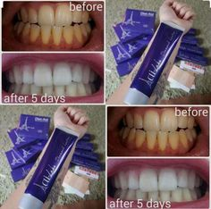 This stuff is incredible and HUGE! https://acti-labs.com/me/florence-nunn/ Only $4.50 for a brighter smile!