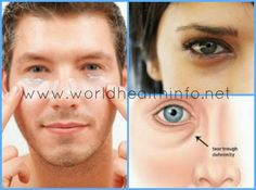 Get Rid of Eye Bags or Puffy Eyes the Natural Way.