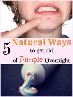 Are pimples robbing off your peace? Well, that will not happen anymore. Understand the causes of pimples and their types. Follow the 5 natural remedies that can help you say good bye to pimples overnight! 000000 Related Comments comments