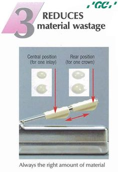 GC #FujiCEM - Resin Reinforced Glass Ionomer Luting Cement  The Paste Pak Dispenser can be set to deliver just the right amount of material by simply moving backwards or forwards the finger grip on the Paste Pak Dispensr.  Standard finger grip positions also speed dispensing as illustrated by the diagram.  For more info Call us 1800 425 3132.