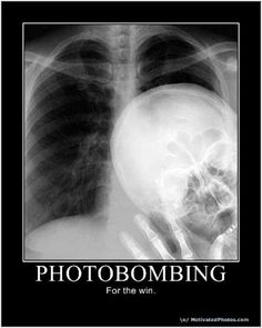 Photobombing-For the win! LOL What made this so funny is knowing there were two x-ray tech some where that go this bored at work.