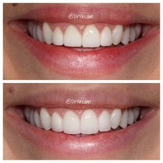 Replacing 4 old monochromatic veneers with newer shades of porcelain. Look how much more natural her smile looks in the after photo!