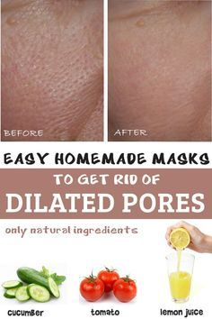 Easy Homemade Mask To Get Rid of Dilated Pores - Get Rid of Pores Easily: 15 Natural Tricks and DIYs To Shrink Large Pores Easy Homemade Face Masks, Homemade Skin Care, Homemade Beauty, Beauty Care, Beauty Skin, Beauty Hacks, Diy Beauty, Beauty Ideas, Face Beauty