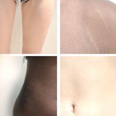 Body positivity loving yourself skin body image Twin koi blog