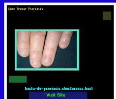 Como Tratar Psoriasis 224723 - Basta De Psoriasis!