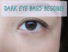 Dark eyes bags be gone | Make Me Up Before You Go Go Blog - Diane Llanto. Tutorial or instructions on how to apply concealer and makeup to look less tired and get rid of bags under the eyes. Recommends applying concealer in a triangle rather than dots under the eyes because that is where the light falls.