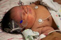 Milagre: Bebê volta a respirar 28 minutos depois de ser declarada morta por médicos em hospital