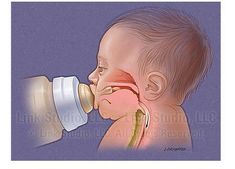 Normal and abnormal oral motor patterns for feeding.