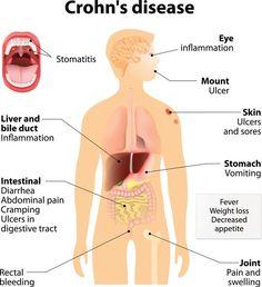 What is Crohn's disease? Crohn's disease, also known as ileitis or enteritis is a long-term inflammatory bowel disease (IBD) that causes i. Crohns Disease Diet, Autoimmune Disease, Crohn's Disease, Crohns Disease Quotes, Chrones Disease Symptoms, Cannabis, Medical Marijuana, Endocannabinoid System, Ulcerative Colitis
