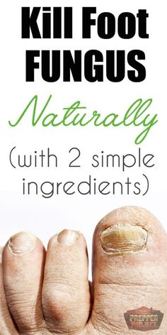 The Fast and Easy Way To Kill Foot Fungus Naturally (with only 2 simple ingredients!) | http://theprepperproject.com