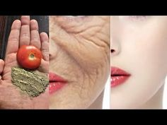 Beauty Tips Easy, Beauty Tips For Glowing Skin, Beauty Hacks, Beauty Care, Beauty Skin, Natural Health Tips, Health And Beauty Tips, Balloon Science Experiments, How To Cure Pimples