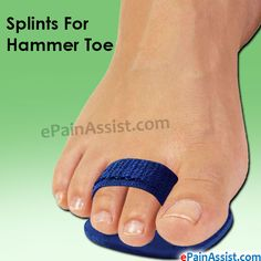 This article explains how Hammer Toe can be treated without surgery by using splints, shoes, pads, and exercises to correct contracted toe or Hammertoes.