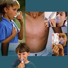 Asma bronquial y su relación con la Rinitis alérgica.