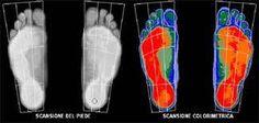 Analisi computerizzata del piede