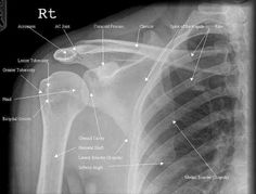 Anatomically labelled AP shoulder x-ray.